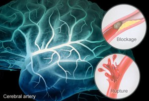 webmd_rm_illustration_of_stroke_causes_